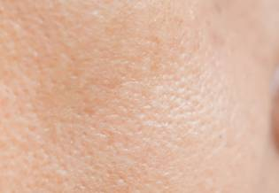 Larocheposay ArticlePage Acne All about acne and oily skin