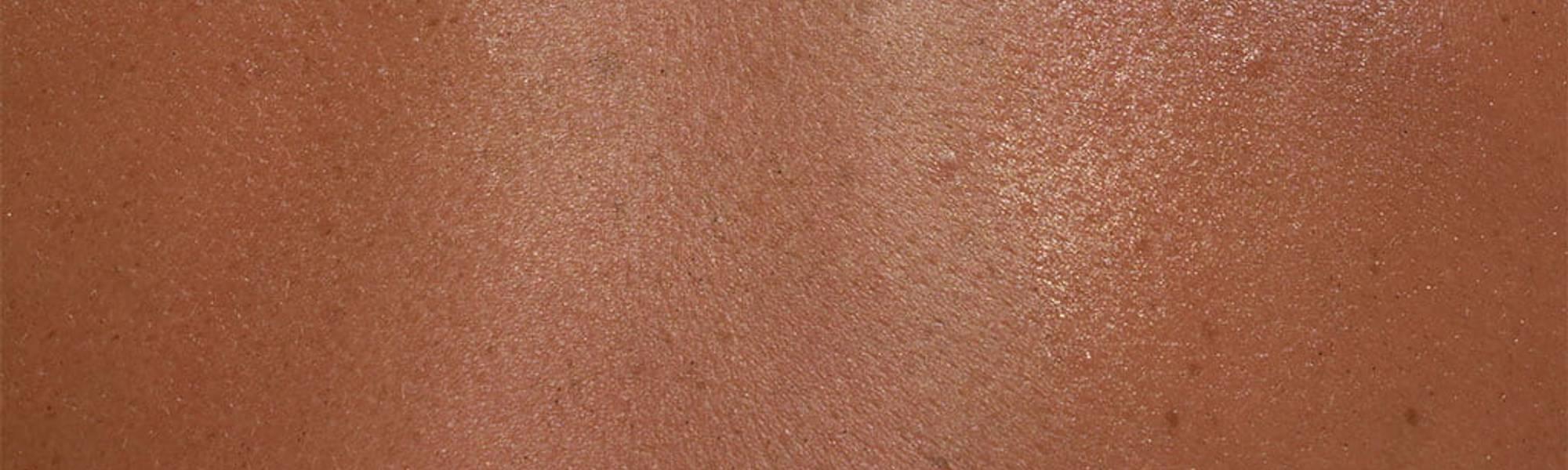 Larocheposay ArticlePage Allergic Skin allergy sensitive skin and reac